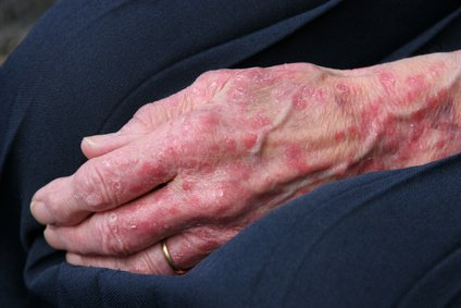 A rough rash on seniors could be a sign of Zinc deficiency.